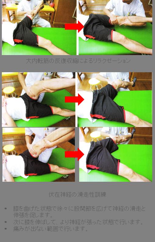 ハンター管症候群に対する運動療法