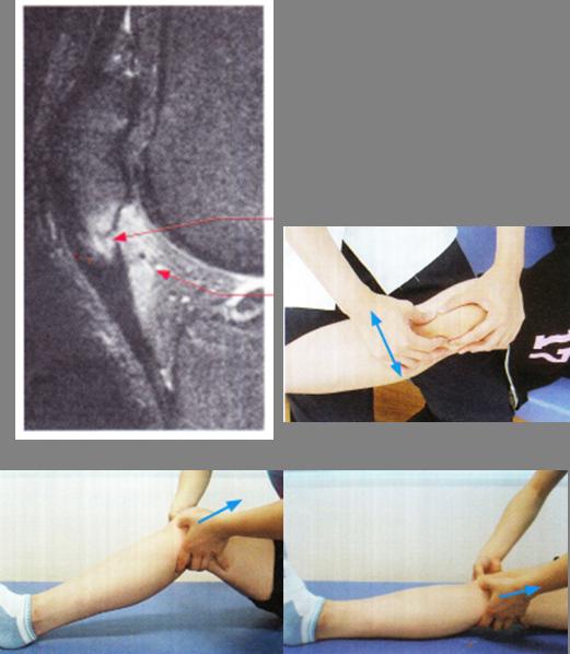 ジャンパー膝(膝蓋靭帯炎)の軟部組織リリース