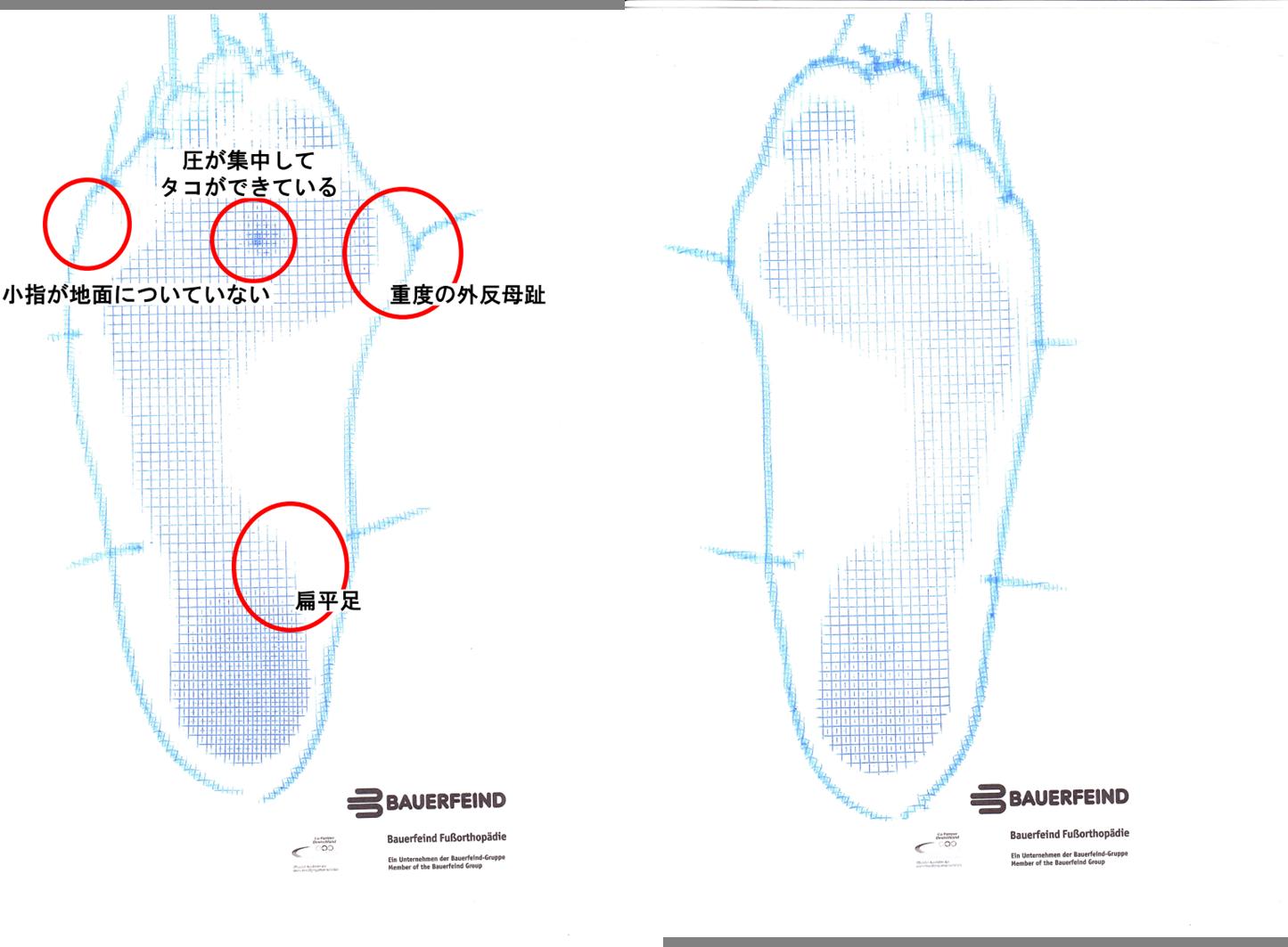 外反母趾のフットプリント