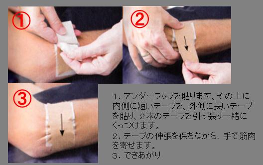外側上顆炎(テニス肘)に対するテーピング