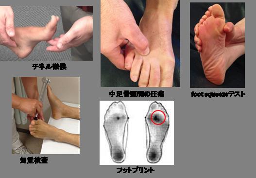 モートン病の検査【金沢市のアルコット接骨院の疾患解説(足の裏の痛み)】