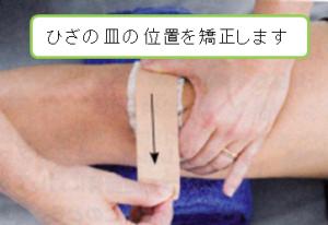 膝蓋大腿関節症に対するテーピング