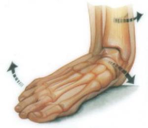 アルコット接骨院有痛性外脛骨