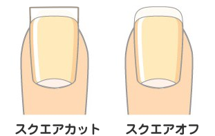 【巻き爪予防】正しい爪の切り方をご存知ですか?【陥入爪予防】