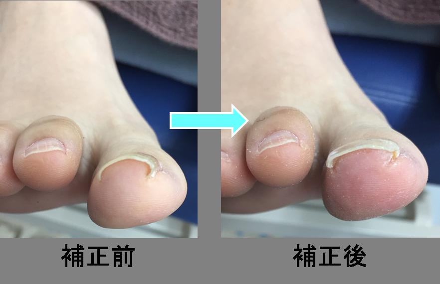 巻爪の痛みの正体