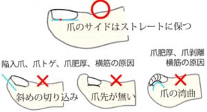 アルコット接骨院巻き爪爪の切り方 (3)