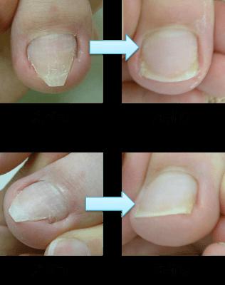 アルコット接骨院巻き爪補正前補正後 (3)