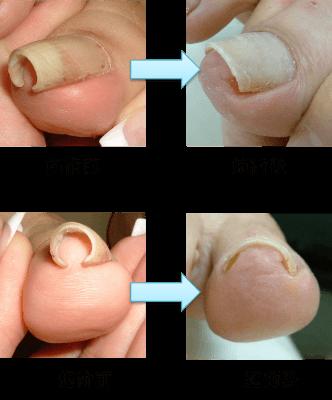 アルコット接骨院巻き爪補正前補正後 (2)