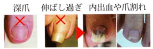 アルコット接骨院巻き爪爪の切り方
