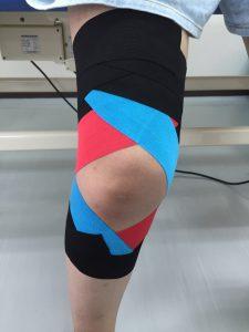 膝関節後外側不安定性に対するテーピング