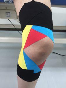 外側側副靭帯損傷に対するテーピング