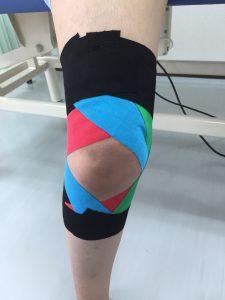 内側側副靭帯損傷に対するテーピング