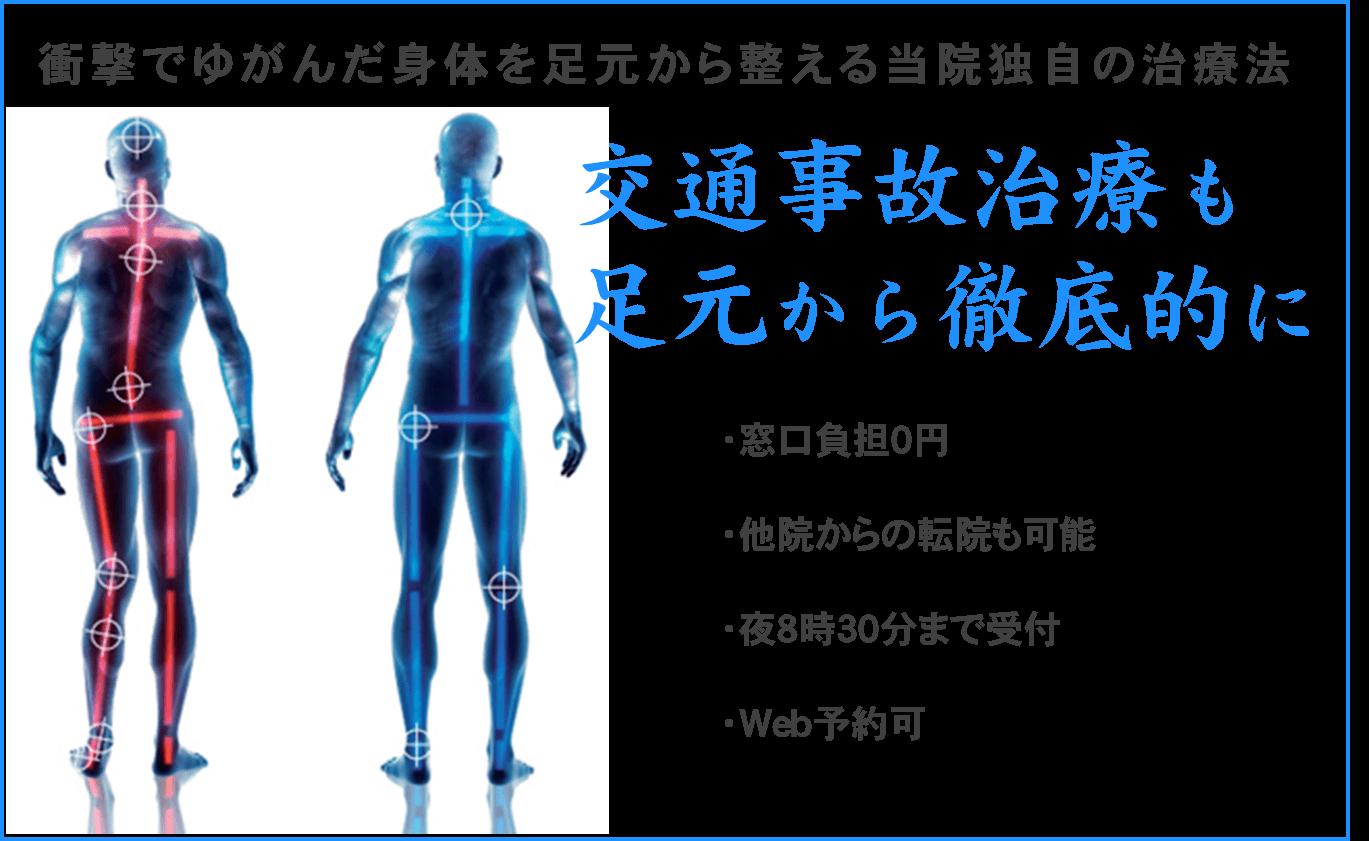 交通事故治療むち打ち治療【金沢市アルコット接骨院】