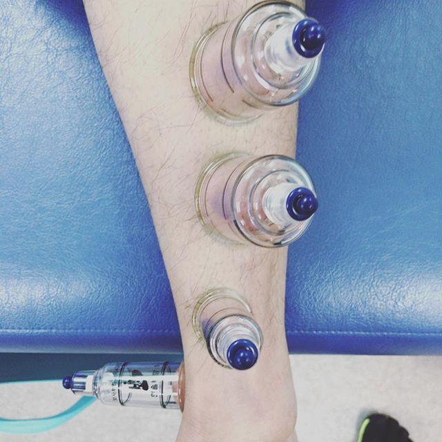 カッピング導入しました。長母趾屈筋の滑走不全による背屈制限の患者さまに施行。IASTMで癒着や瘢痕を探索し、カッピング。超音波も併用して即座に改善。これは使える。#石川県 #金沢市 #小立野 #接骨院 #アルコット接骨院 #インソール #巻き爪補正 #カッピング #IASTM #筋膜リリース #吸玉