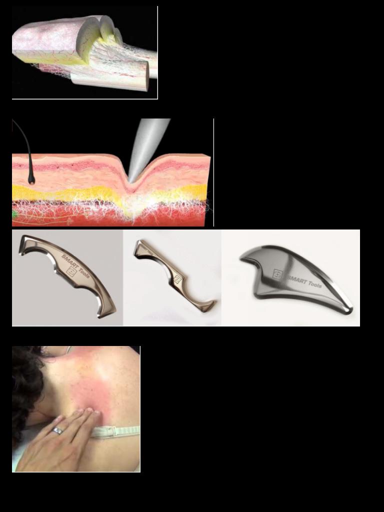 梨状筋周囲の組織の癒着を剥離するにはIASTMを使用します。