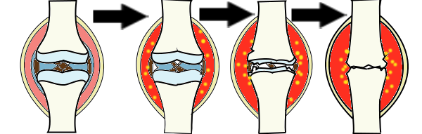 関節リウマチの進行