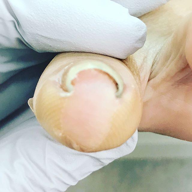 巻き爪補正。中度から重度の巻き爪も一度の施術でここまで改善します。痛みもほとんどない状態でお帰りいただけます。巻き爪は、正しい知識とケアができれば、ほぼ100%痛みなく対処できます。出血したり化膿するまで放置してしまうと、手術など外科的な処置が必要になります。夏場はサンダルなどで、指先に当たらず誤魔化せますが、これからの季節はそうはいきません。どうぞお早めにご相談下さい。#石川県 #金沢市 #小立野 #アルコット接骨院 #接骨院 #インソール #巻き爪 #巻き爪矯正 #ペディグラス #痛みなく補正 #陥入爪
