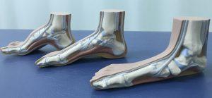 足底腱膜炎の治療方針は足が柔らかい傾向にあるか硬い傾向にあるかで決まります