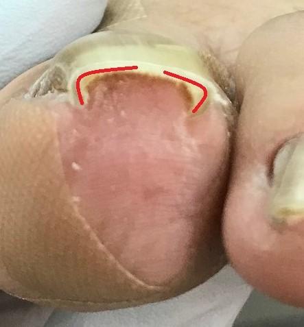ホッチキス型の巻き爪。爪の端は結構巻いています。
