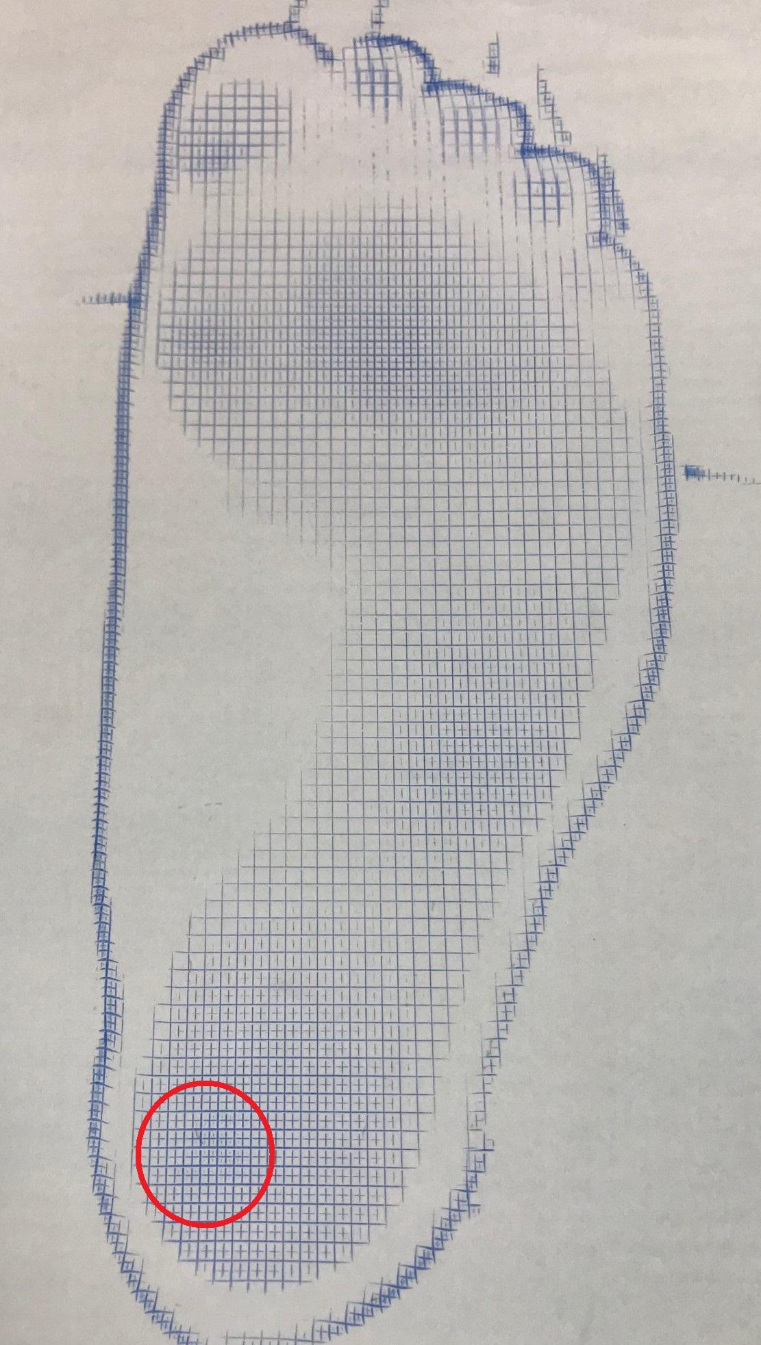 踵骨下滑液包炎を起こした剣道選手に対するヒールパッド作製