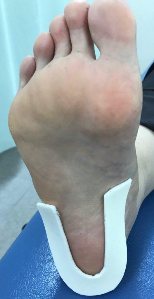 踵骨下滑液包炎パッド