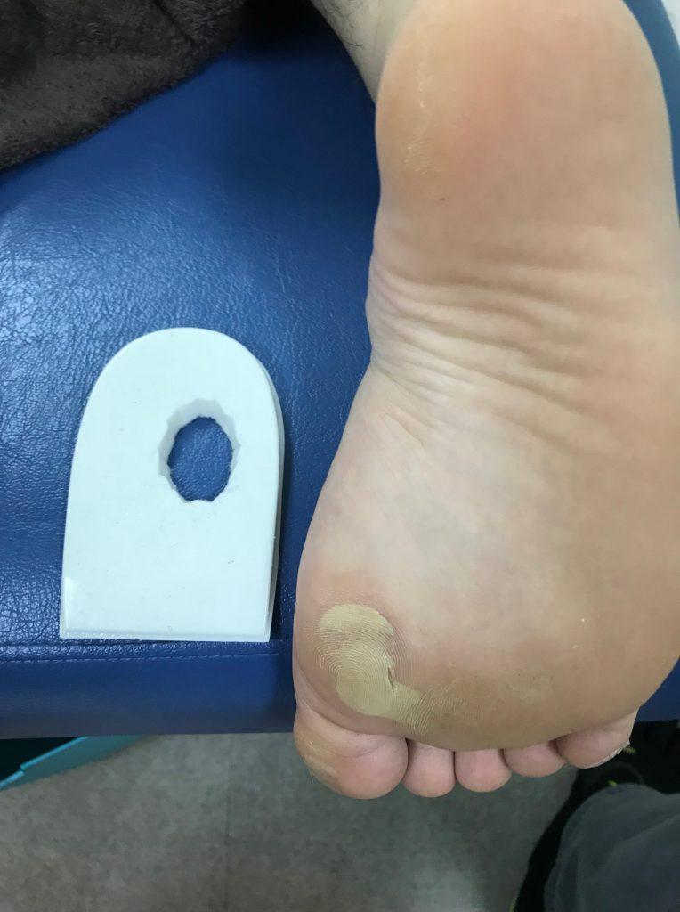 踵骨下滑液包炎に対するヒールパッドソルボ生地付き
