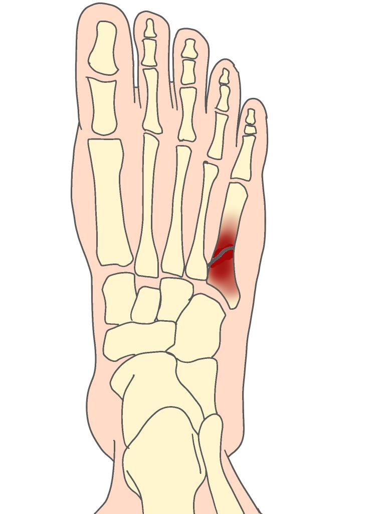 ジョーンズ骨折とは【金沢市のアルコット接骨院の疾患解説(足の裏の痛み)】