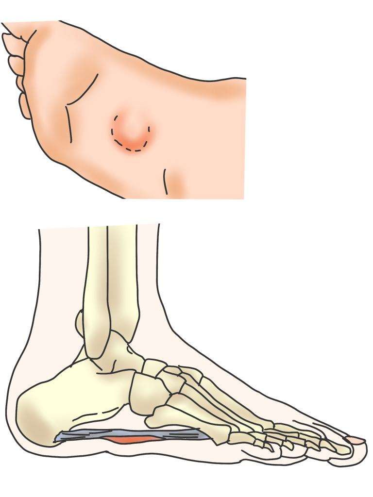 足の裏にしこり【金沢市のアルコット接骨院の疾患解説(足の裏の痛み)】