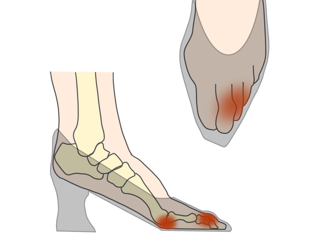 足趾の変形とパンプスの関係