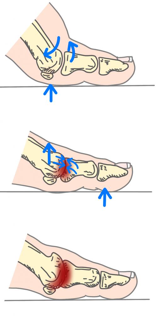 強剛母趾のメカニズムとは