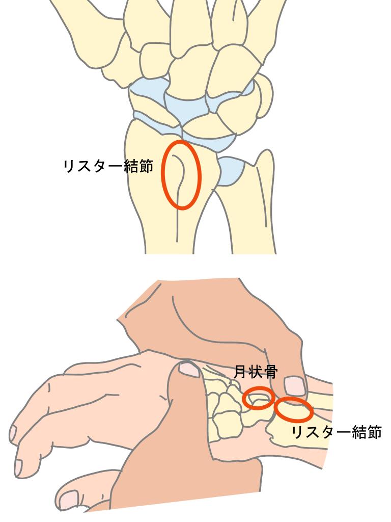 キーンベック病の圧痛、リスター結節と月状骨の場所