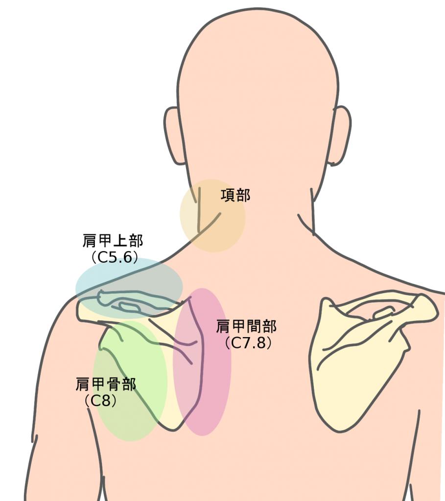 頚椎椎間板ヘルニア 肩甲骨まわりの痛み
