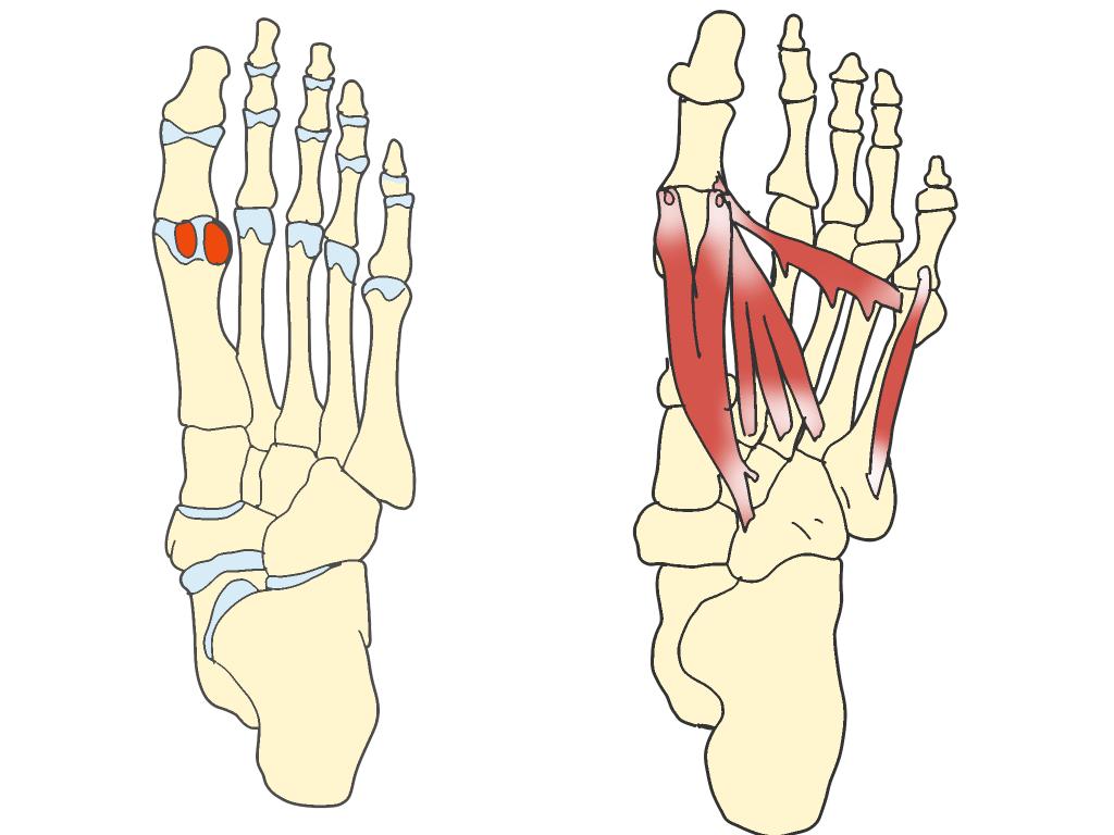 種子骨障害とは【金沢市のアルコット接骨院の疾患解説(足の裏の痛み)】