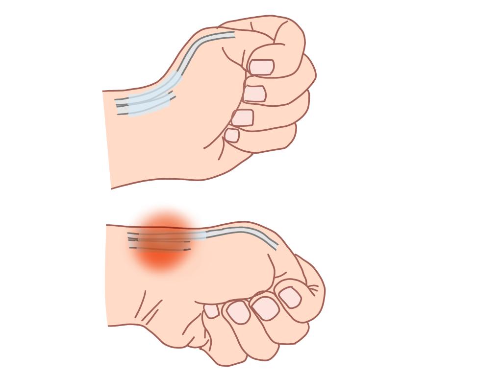 「ドケルバン病」の画像検索結果