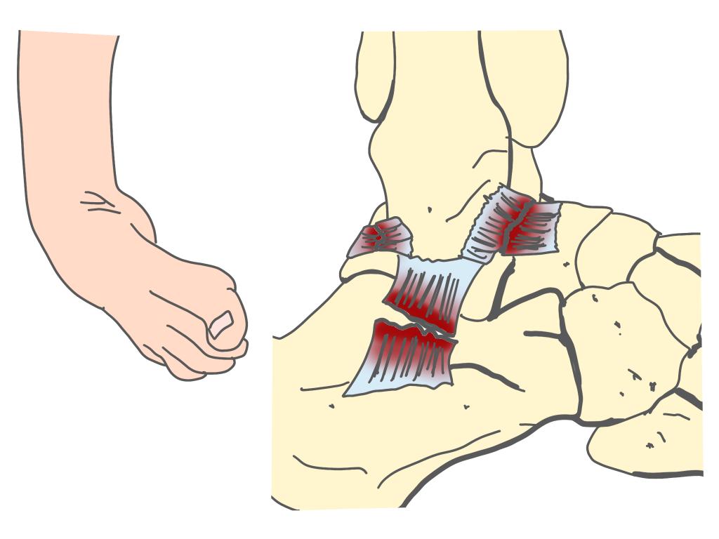 足関節捻挫靭帯損傷