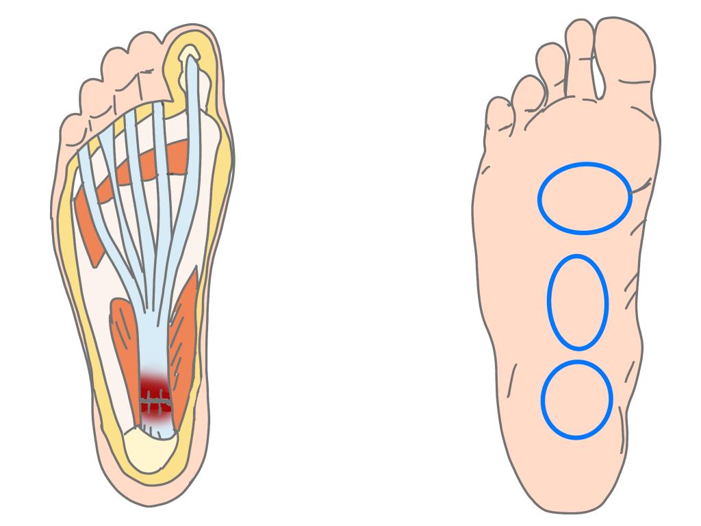 足底腱膜炎痛みの部位