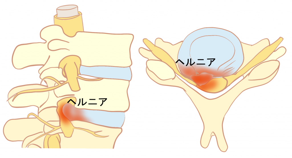 頚椎椎間板ヘルニアとは