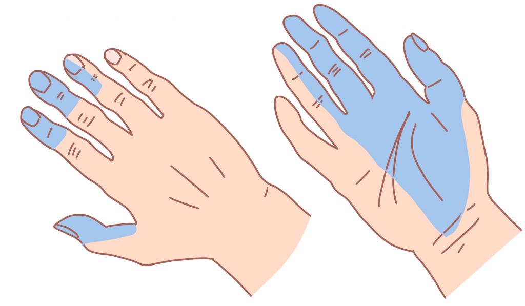 手根管症候群しびれの部位
