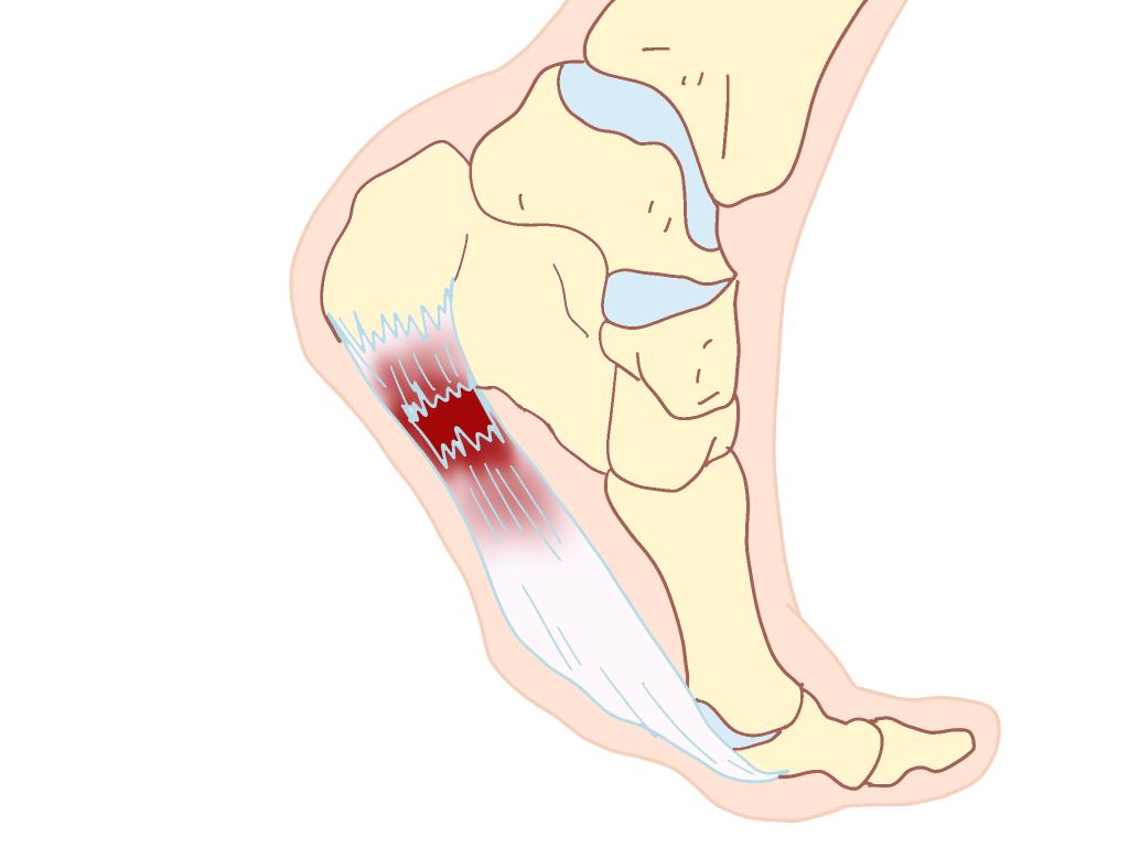 足底腱膜炎蹴り出し