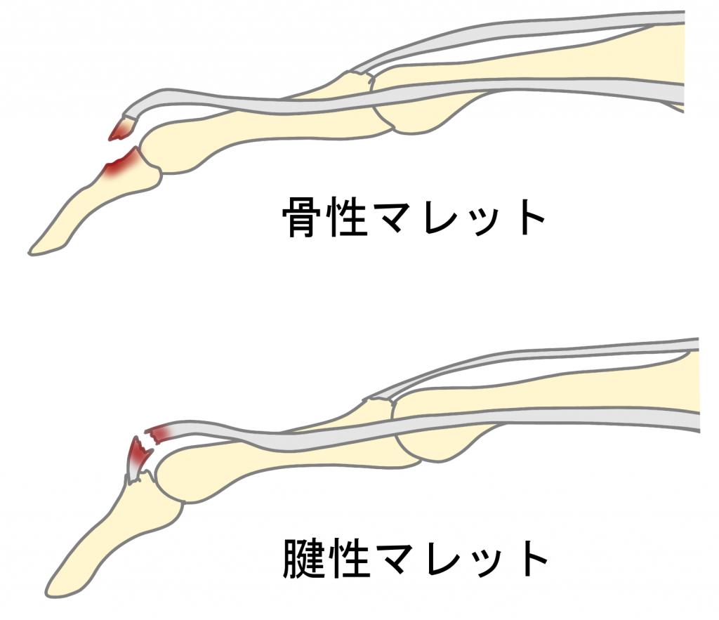 マレットフィンガーのタイプ、骨性マレットと腱性マレットの違い