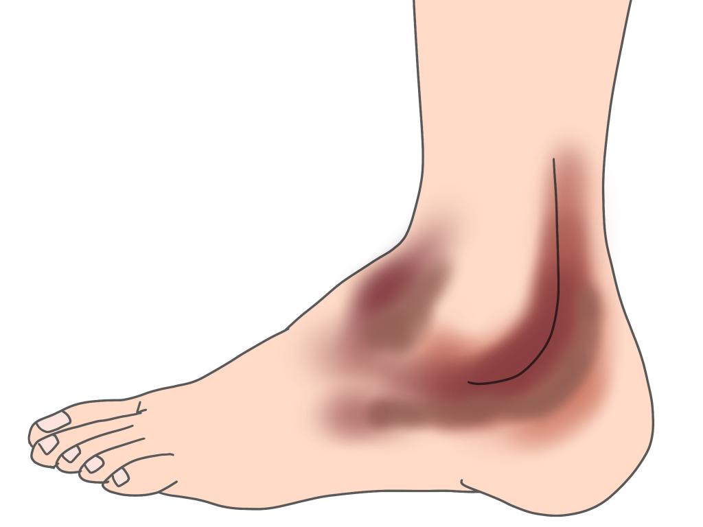 足首のねんざ後のはれについて
