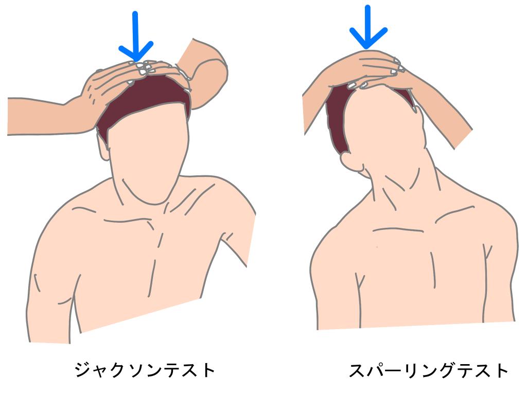 頚椎椎間板ヘルニアジャクソンテスト、スパーリングテスト