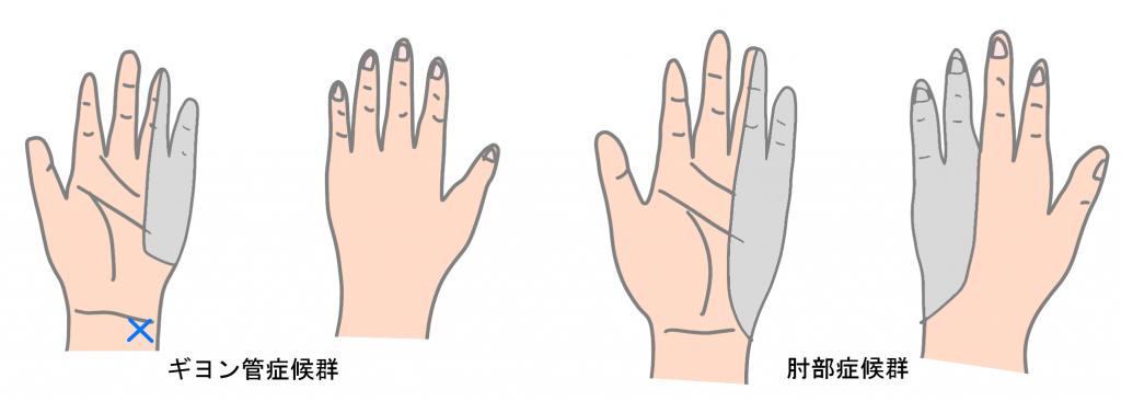 ギヨン管症候群と肘部管症候群のしびれの部位の違い
