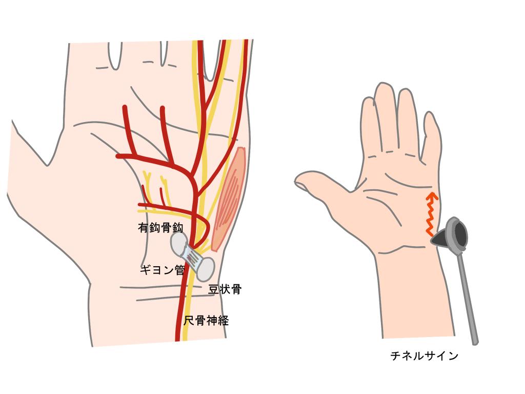 ギヨン管症候群とは、チネルサイン