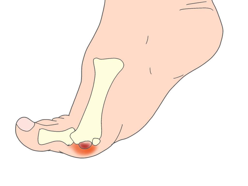 種子骨障害蹴り出し時の痛み