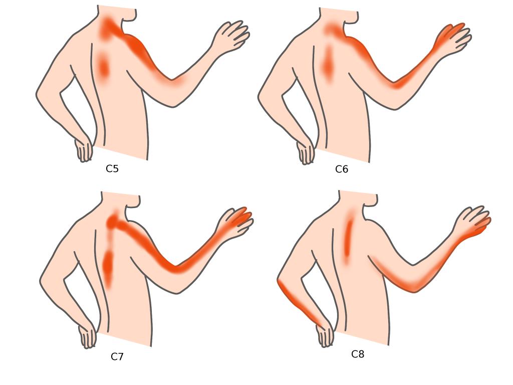 頚椎椎間板ヘルニア頚椎症腕の痛み