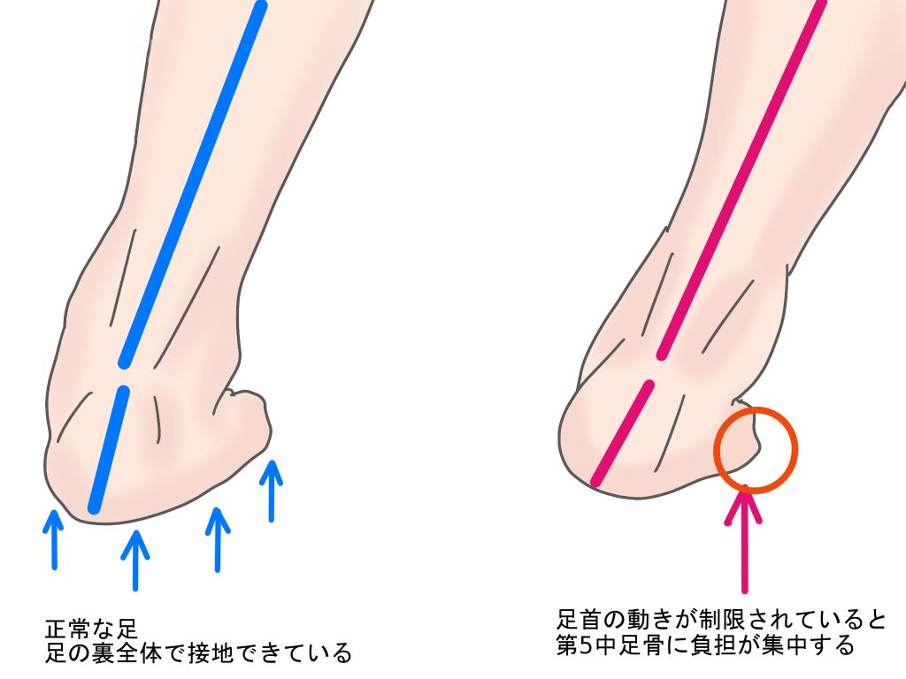 ジョーンズ骨折の原因【金沢市のアルコット接骨院の疾患解説(足の裏の痛み)】