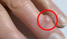 へバーデン結節粘液嚢腫