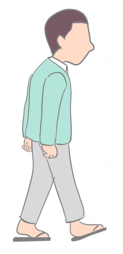 脊柱管狭窄症間欠性跛行画像