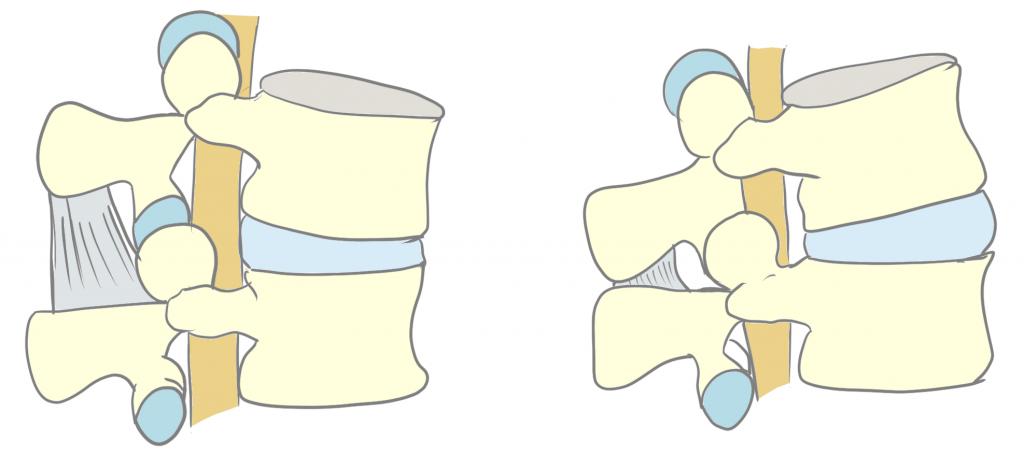 腰部の屈伸による椎間関節の動き